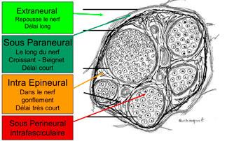 blocs nerveux périphériques et gaines des nerfs
